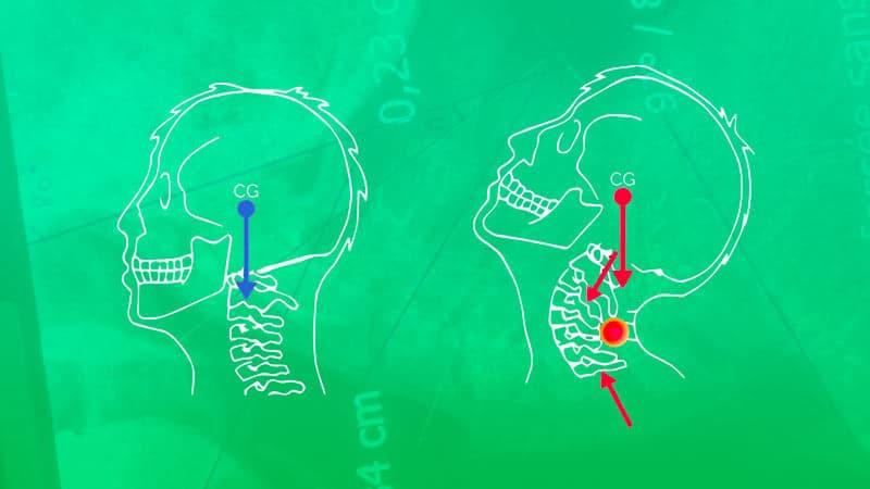 Montrer la contrainte de l'extension cervicale