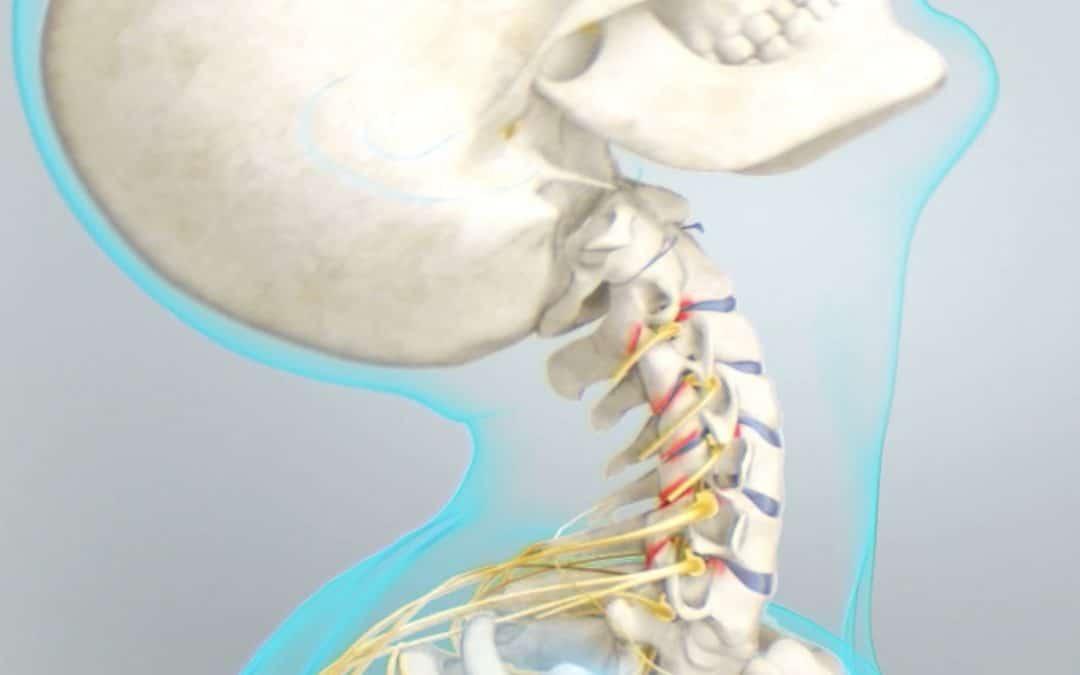 Maux de tête, céphalées, migraines… Des symptômes souvent méconnus de l'extension cervicale.