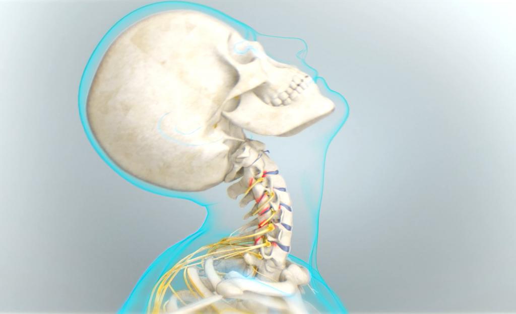 Douleur au cou extension cervicale
