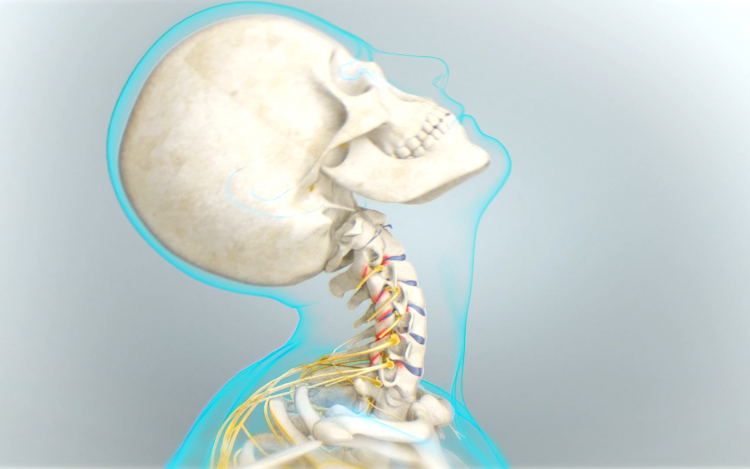 Douleur au cou, raideur dans la nuque, cervicalgie, quelle origine ?