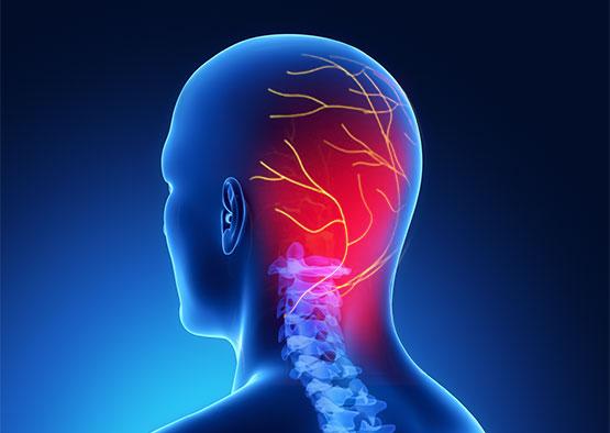 Maux de tête, migraine, comment soulager les douleurs ?